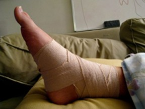 A Sprained Bandaged Ankle